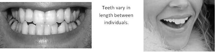 Examples of varying teeth lengths