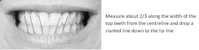 Measuring teeth alignment