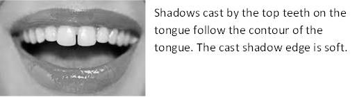 Teeth cast a shadow on the tongue
