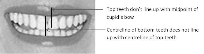 Mouth showing top & bottom teeth alignment