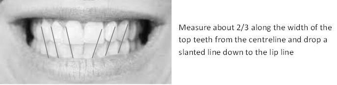 Measuring teeth alignment