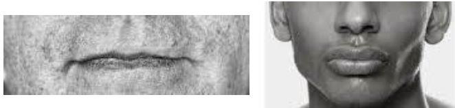 Upper lip examples