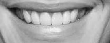 Top lip casting shadow onto gums