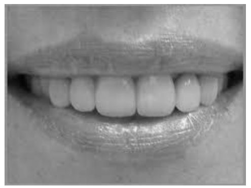 Mouth with only top teeth visible