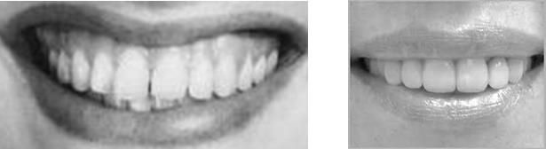 Smiles with gum visible